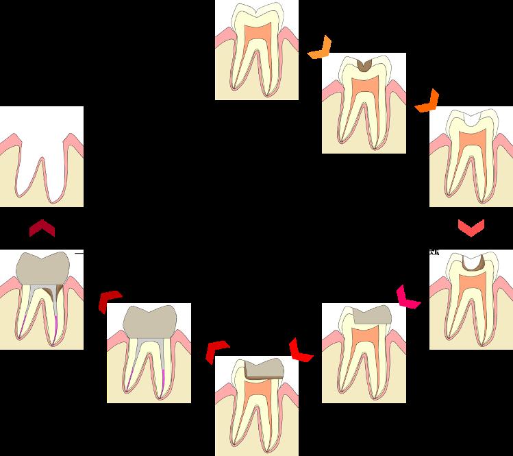 むし歯による負のスパイラル