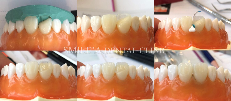 前歯ダイレクトボンディング